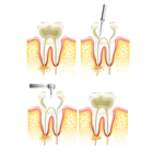 Endodoncia dental Teruel